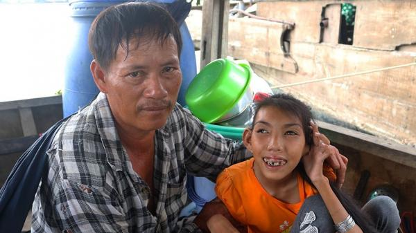 Người cha 16 năm chở con gái teo não bẩm sinh nhặt rác trên sông: 'Máu mủ mình tạo ra, phải cưng phải chiều, bỏ đi là mang tội'