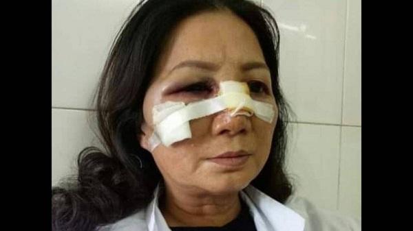 Hải Dương: Bênh vợ, công an xã đánh hàng xóm gãy sống mũi