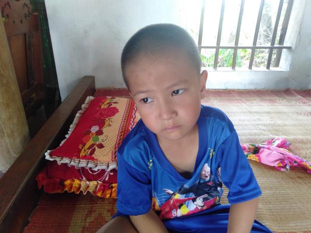 5 tuổi nhưng đứa trẻ chỉ nặng 9kg, chưa có cơ hội phẫu thuật.