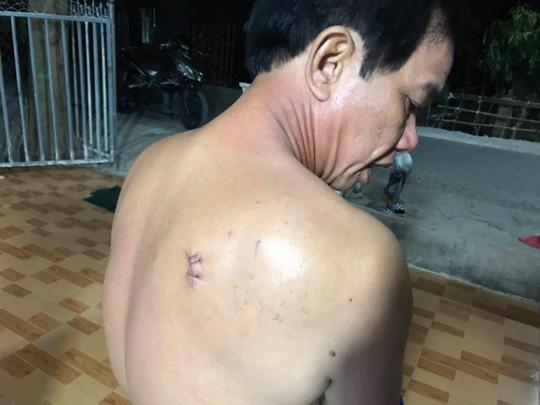 Ông Nhàn cũng bị vết thương dưới vai phải. Ảnh do gia đình nạn nhân cung cấp.