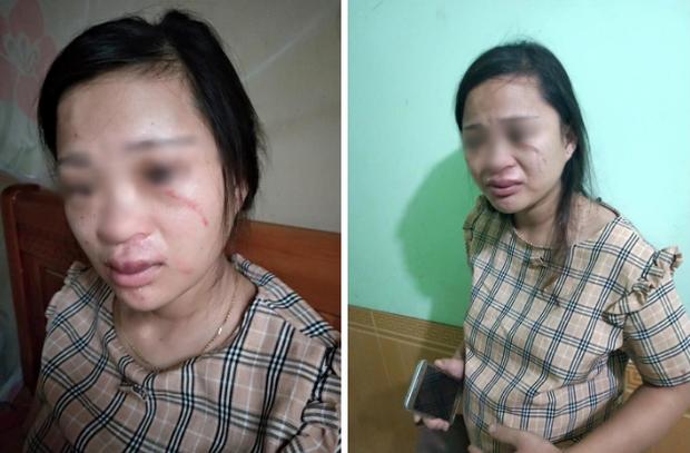 Hình ảnh người vợ đang mang thai với nhiều thương tích trên cơ thể do bị chồng hành hung.