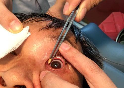 Rất may hạt thóc găm vào khóe mắt chứ không găm vào con ngươi của bệnh nhân.