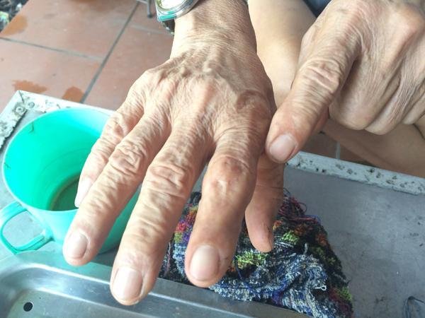 9 lần bị rắn độc cắn đã để lại trên hai bàn tay cụ Pháo nhiều vết sẹo.