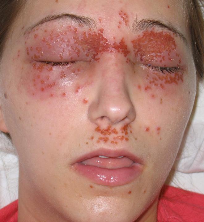 Herpes sinh dục có thể lây lan lên môi nếu quan hệ tình dục bằng miệng với một người mắc bệnh lây truyền qua đường tình dục.