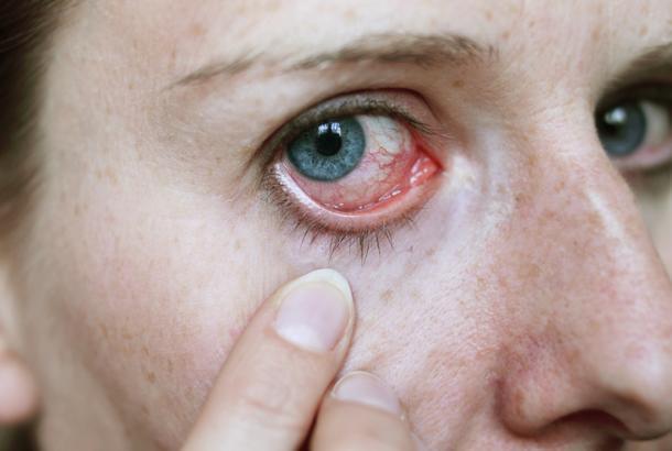 Bệnh lây truyền qua đường tình dục có thể gây ra nhiễm trùng mắt như Herpes, lậu, chlamydia và giang mai.