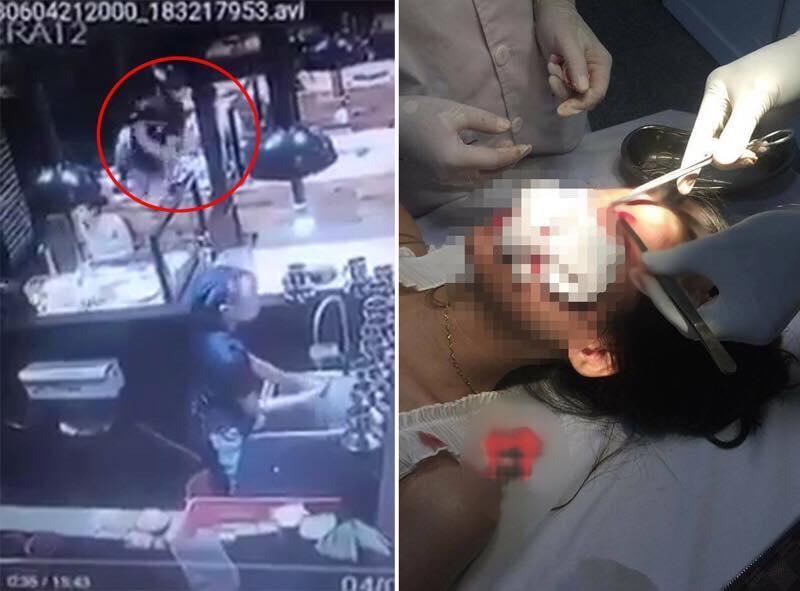 Hình ảnh cô gái bị nam thanh niên trêu ghẹo, đánh liên tiếp vào đầu được đăng tải trên mạng xã hội.