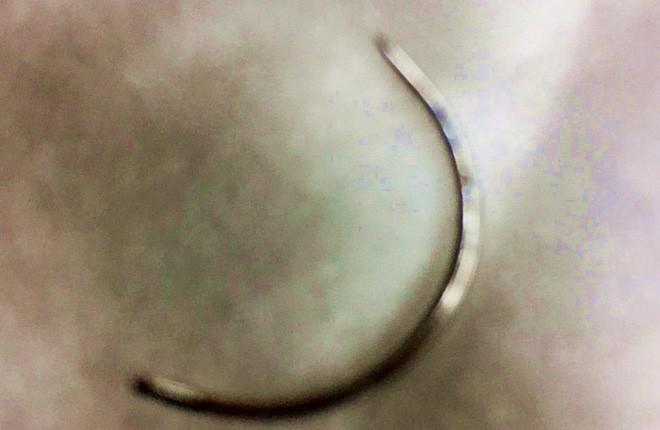 Cây kim khâu được lấy ra sau 6 giờ phẫu thuật. (Ảnh: BVCC).