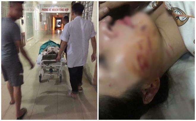 Chị G. hiện đang điều trị tại bệnh viện sau sự việc - Ảnh: FB