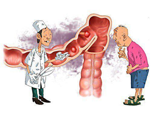 Lối sống là nguyên nhân chính gây viêm đại tràng