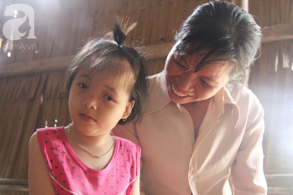 Dù biết Hồng bị não úng thủy bẩm sinh, nhưng chị Tiên đành để con ở nhà nuôi vì không có tiền đưa đi bệnh viện.