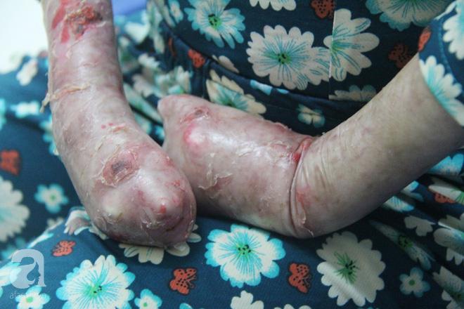 Dương mong có thể phẫu thuật để lấy lại những ngón tay của mình.
