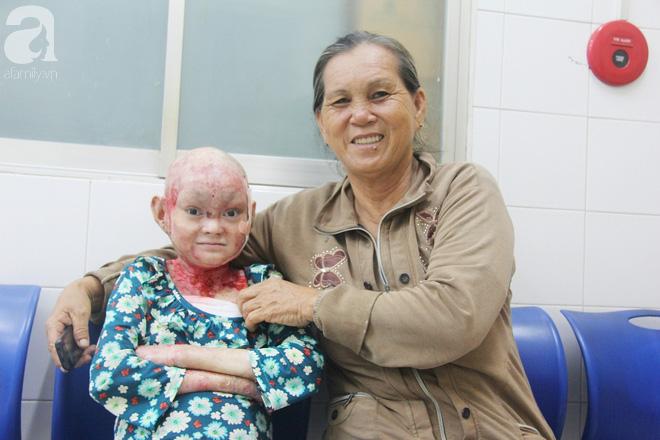 Bà Lệ vui mừng khi lại nhen nhóm cơ hội giúp con gái chữa bệnh.