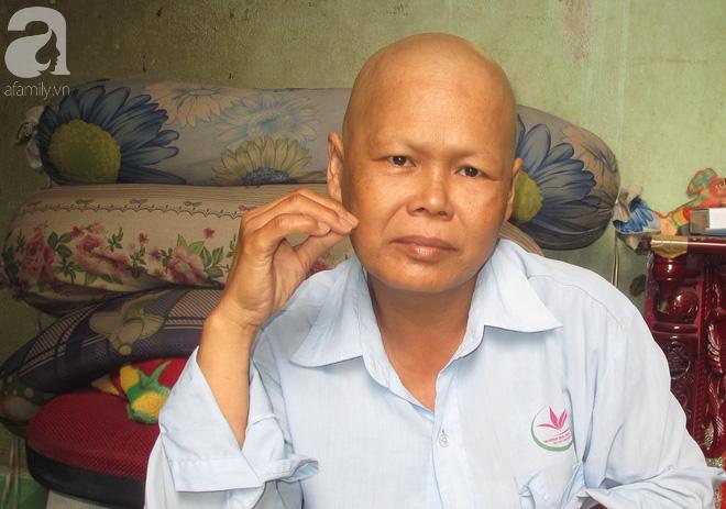 Khuôn mặt của người phụ nữ U50, đầu rụng hết tóc vì chứng bệnh ung thư vú quái ác.