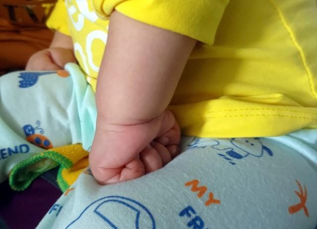 2 bàn tay bé luôn nắm chặt cứng. Ảnh: Lê Bảo