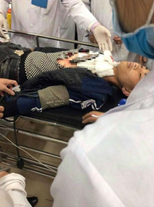 Em NTT nhập viện cấp cứu trong tình trạng chiếc dao vẫn găm trên cơ thể.