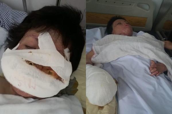 Dung đã chịu đựng trăm ngàn cơn đau hành hạ khi mổ tay, mũi, mồm...