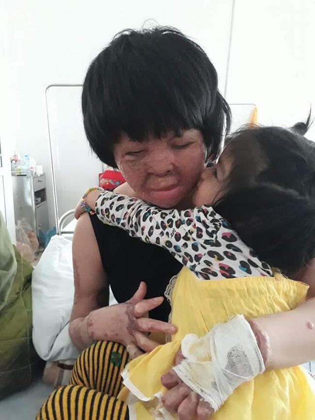 Hình ảnh hiện tại của Dung: khuôn mặt và hai bàn tay đã được phẫu thuật chỉnh sửa khá nhiều