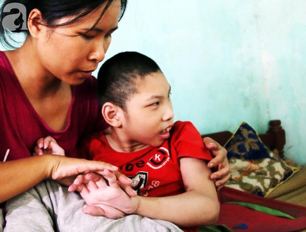 Lúc mới sinh, bé Tâm bị dị tật xương đầu nhỏ, bại não khiến cháu đã 10 tuổi nhưng vẫn cứ ngu ngơ như đứa trẻ mới sinh.