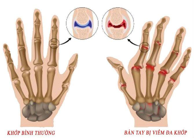 Bàn tay bị viêm khớp tấy đỏ so với khớp lúc bình thường