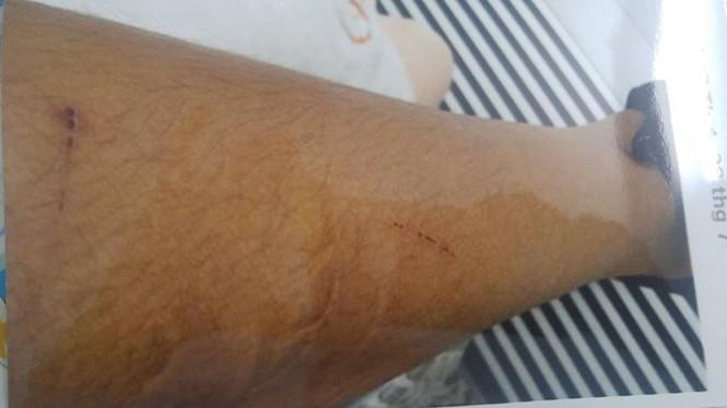 Một dấu vết t.hương tích trên cơ thể nạn nhân P. T. T. (Ảnh: Báo Lao Động)