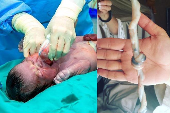 Vừa đón em bé chào đời, bác sĩ hét lên