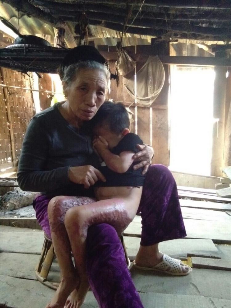 Chỉ vì trò nghịch dại của bạn, An bị bỏng nặng toàn thân - Ảnh: Dân Việt
