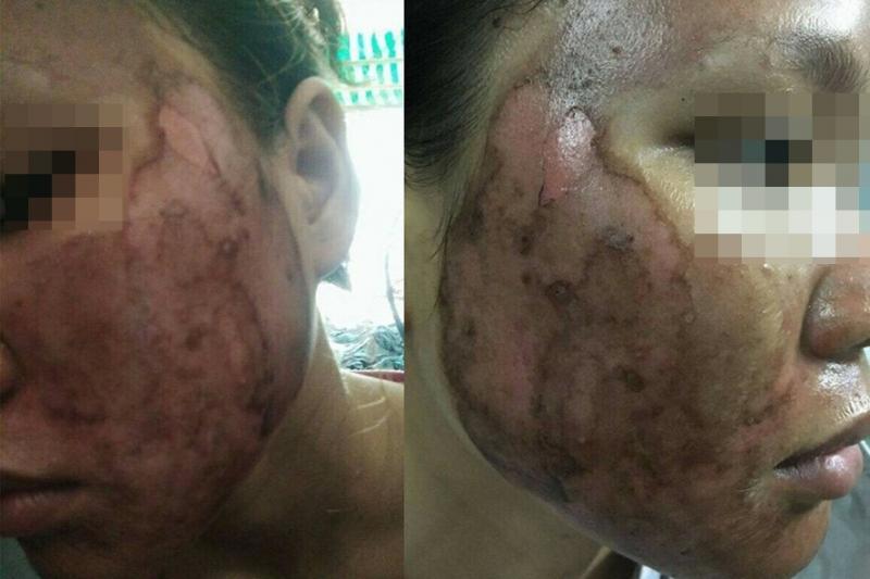 Nhiều chị em bị tổn thương da nặng nề vì tin lời quảng cáo trên mạng - Ảnh: Internet