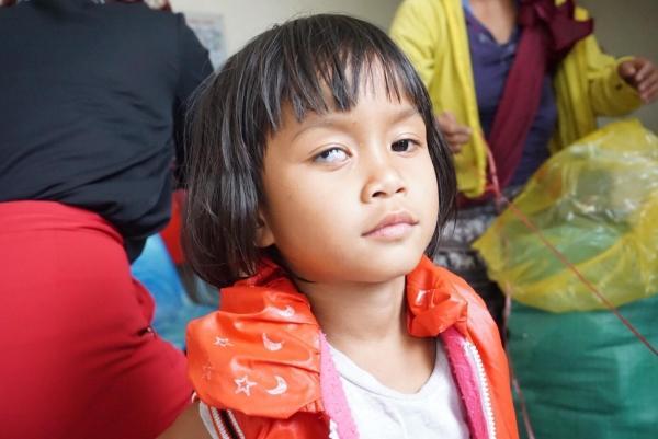 Con gái chị Hương bị dị tật một bên mắt.