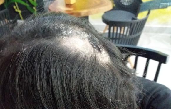 Mái tóc bết và da đầu bị ảnh hưởng bởi keo 502 của cô gái