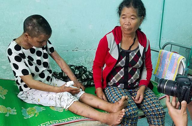 Y Nhiêu đang được chăm sóc tại trung tâm y tế huyện Đắk Glei