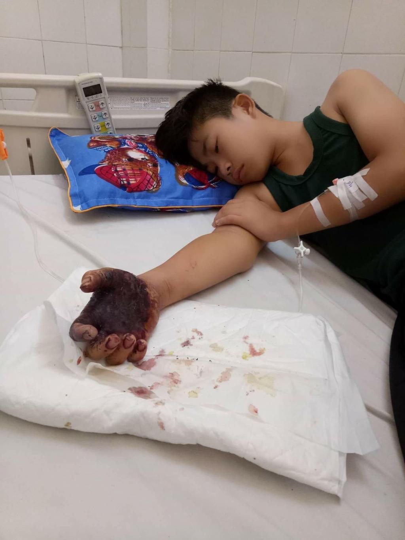 Em Vương đang được điều trị tai bệnh viện.