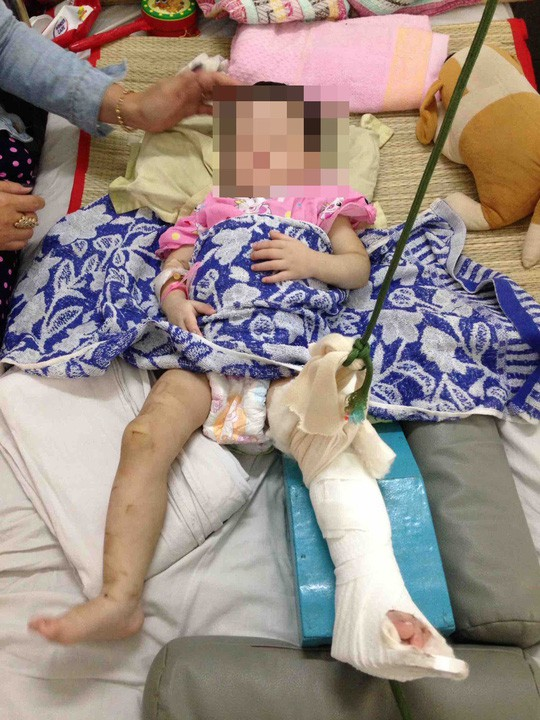 Cháu bé bị đánh gẫy chân, đa chấn thương.