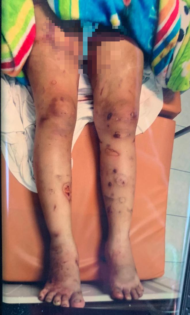 Vết thương trên người chị Y. Ảnh: M.T
