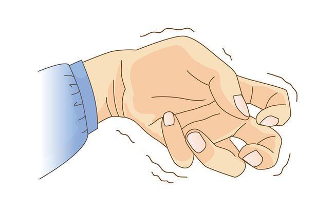 Theo một nghiên cứu vào năm 2011 tạp chí y khoa America Family Physician, run tay là một loại rối loạn vận động thường gặp nhất.