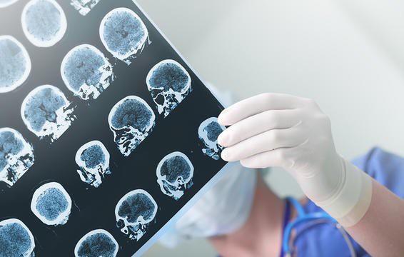 Chứng run vô căn trong chốc lát cũng có các biểu hiện gần giống với một loại run tay có liên quan tới bệnh Parkinson.