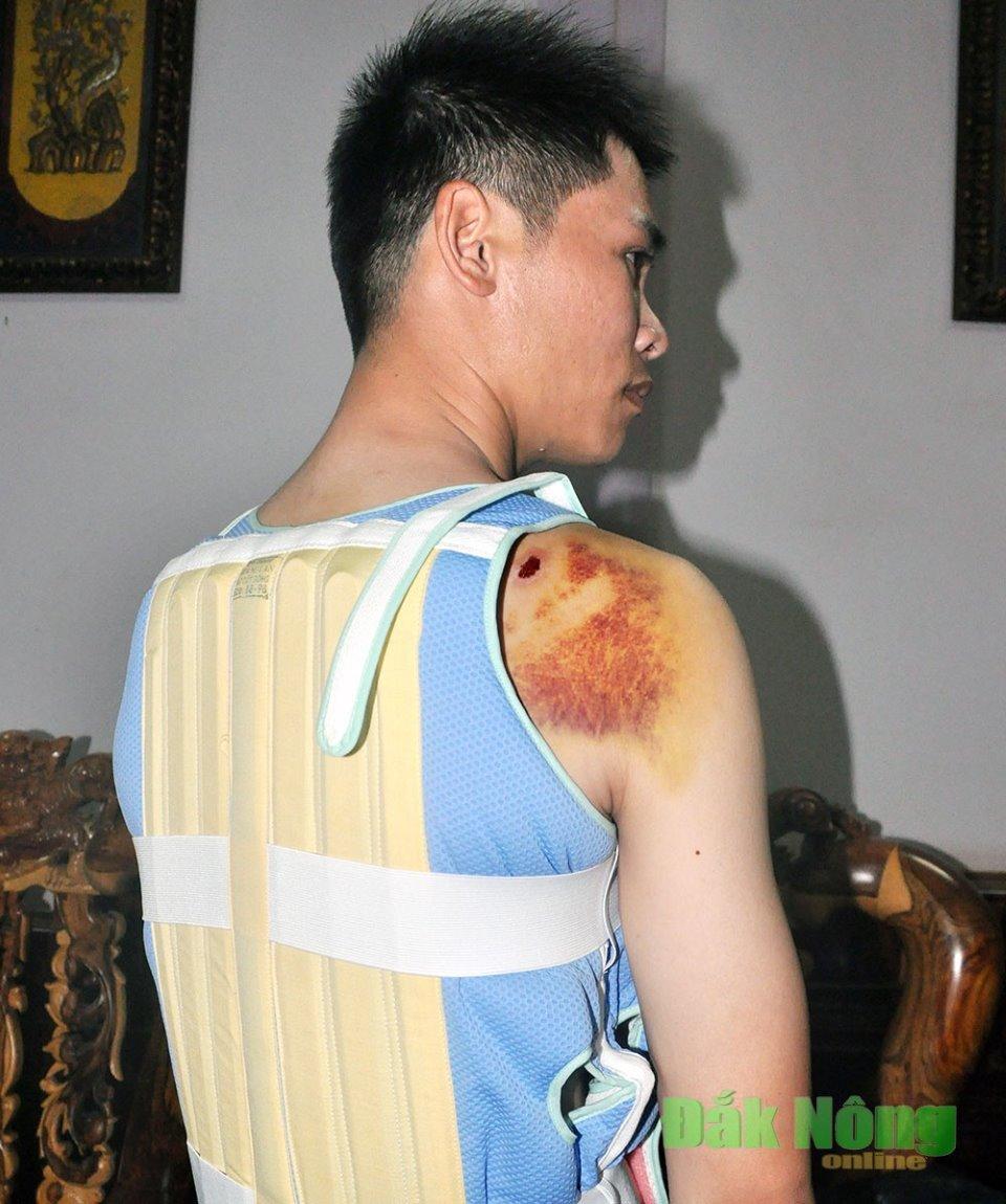 Sau khi bị đánh, anh Trần Thanh Mậu bị thương ở vai phải và cột sống. Ảnh: Bảo Ngọc