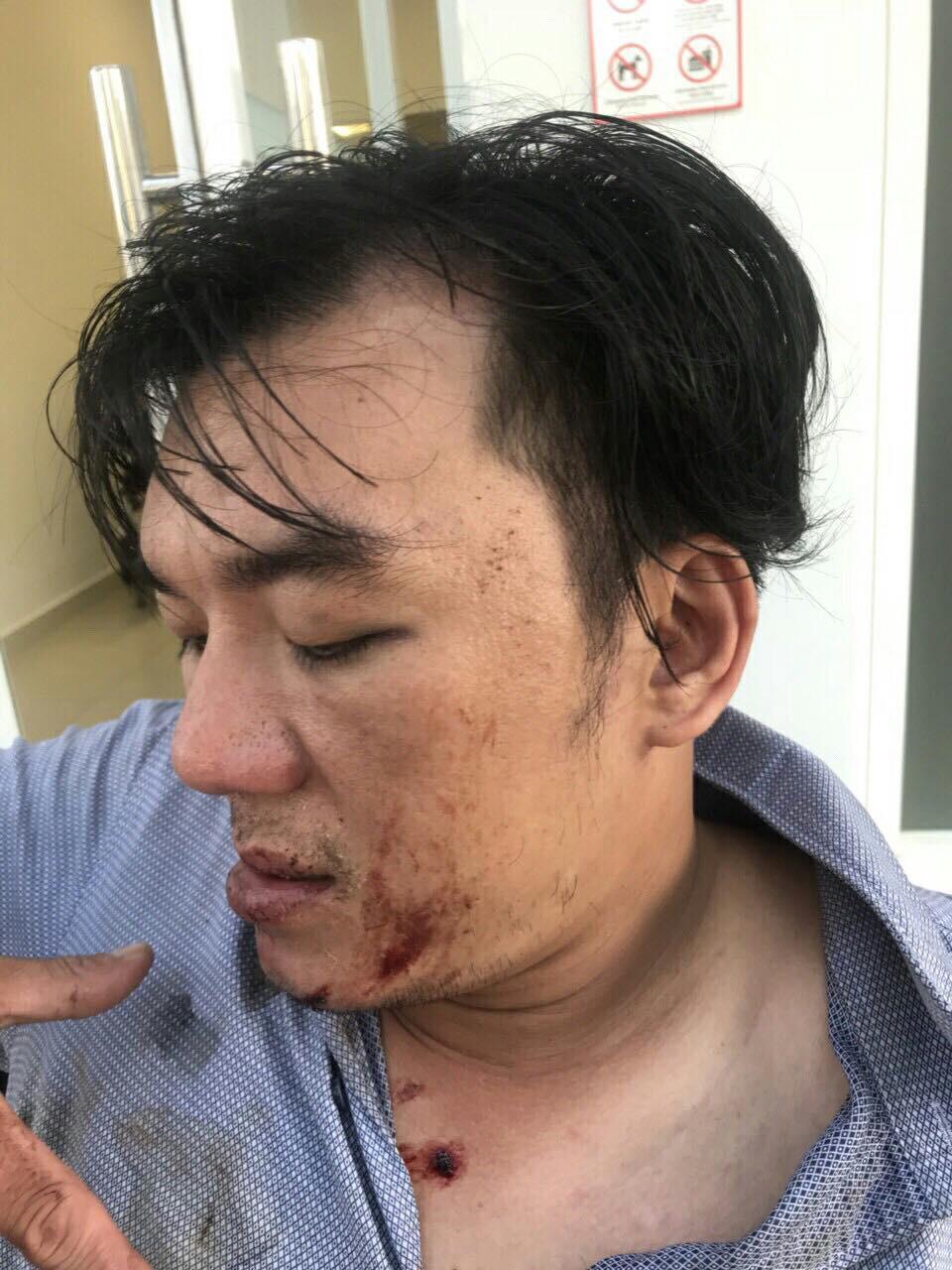 Anh Hiếu được gia đình đưa đến bệnh viện trong tình trạng bị đa chấn thương vùng mặt, mang tai, chấn thương não.