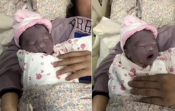 Em bé sinh ra có làn da tím như củ khoai môn.