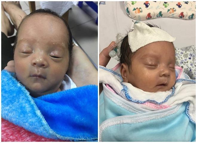 Bé sinh non 1,4kg phải nằm lồng ấp 1 tháng mới được ra viện.