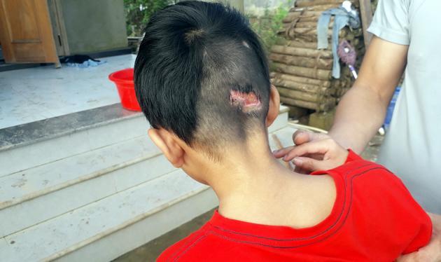 Vết thương phía sau đầu của Dũng do té ngã khi lao ra cứu em trai.