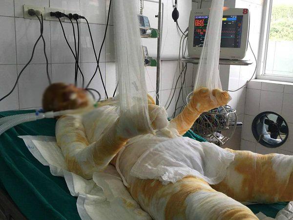 Cháu Nguyễn Thị Hà Nhi 14 tuổi bỏng 81%, có 73% bỏng sâu, tiên lượng xấu