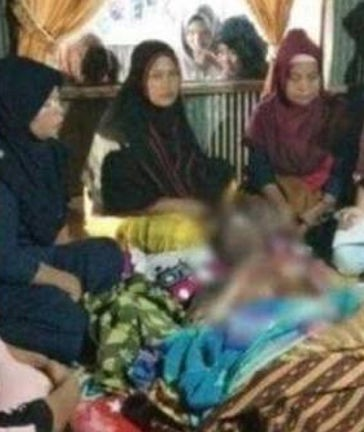 6 ngày sau khi bị vợ tạt nước sôi vào người, anh Bahtiar đã qua đời.
