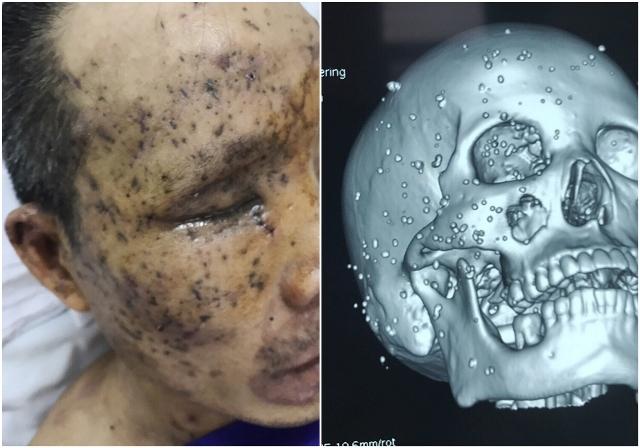 Hơn 100 dị vật nhỏ găm vào vùng mặt, sọ, hốc mắt và xoang hàm bên phải của bệnh nhân (Ảnh thật và ảnh sọ não dựng hình 3D).