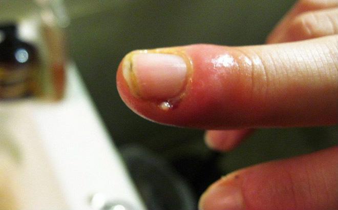 Vết xước măng rô bị nhiễm trùng cần đến ngay bệnh viện để được điều trị - Ảnh minh họa: Internet