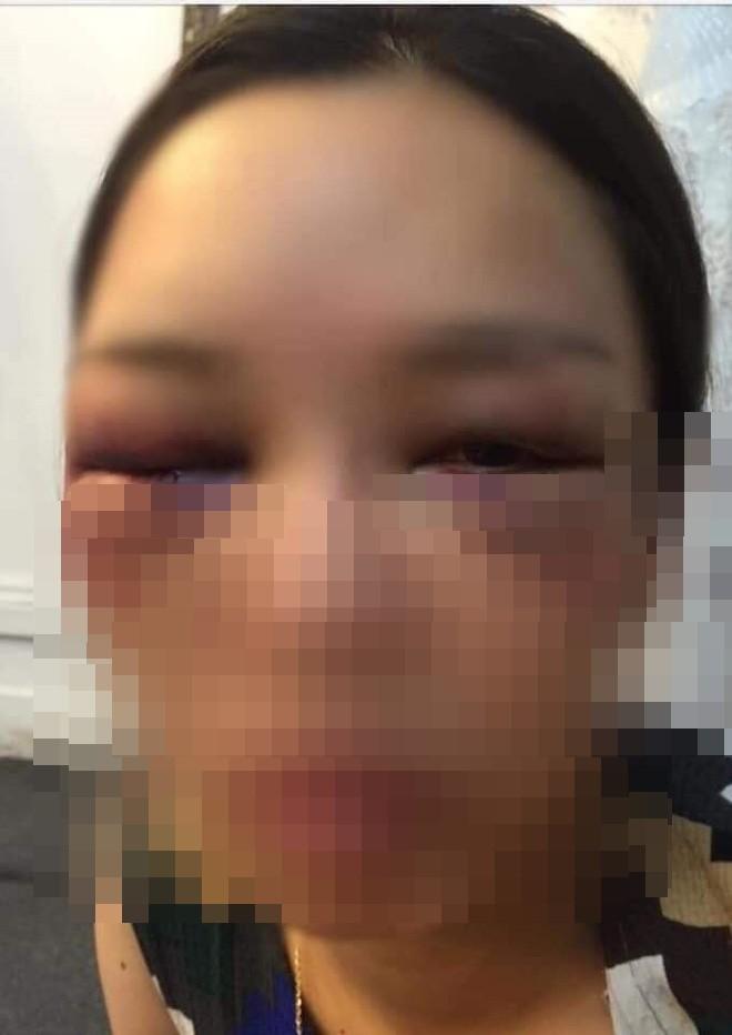 Hình ảnh được cho là cô dâu xuất hiện trong đoạn clip gây xôn xao mạng xã hội ngày hôm qua.