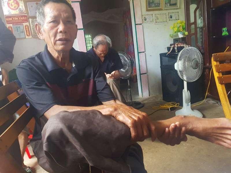 Ông Đoàn Văn Đường (66 tuổi, trú thôn Đông Xá) cho biết ông bị nhóm người đánh gây thương tích ở chân.