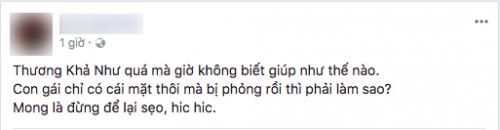 Một cư dân mạng bất ngờ tiết lộ Khả Như bị bỏng mặt.