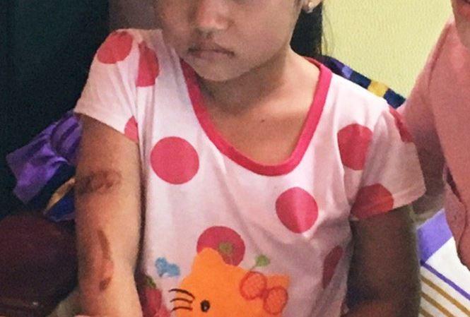 cháu T. và vết bỏng chưa lành trên tay Bé gái 7 tuổi tố bị cha, mẹ kế dí sắt nung đỏ vào mặt