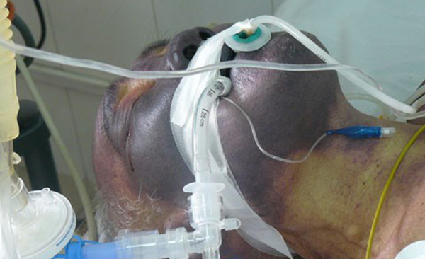 Một trường hợp mắc liên cầu lợn điều trị tại BV Bệnh nhiệt đới TƯ