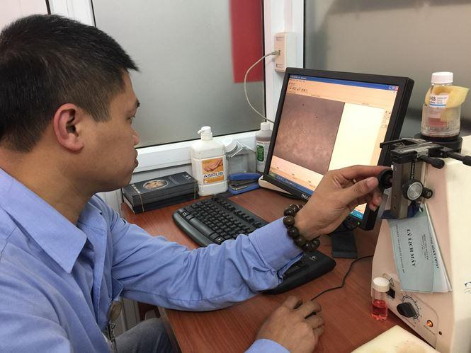 Giám đốc Ngân hàng Mắt Trung ương Nguyễn Hữu Hoàng đo các thông số trên đôi giác mạc bé A vừa hiến tặng. Ảnh: Phạm Đức Long